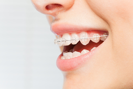 Woman smiling with braces from Water's Edge Dental.