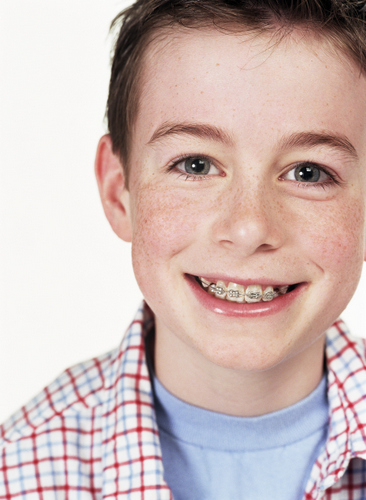 Boy smiling with braces from Water's Edge Dental in Boise, ID