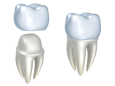 Dental Crowns Diagram used by Boise dentist at Water's Edge Dental.