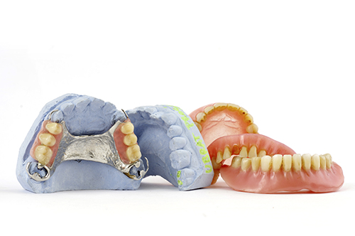 Denture and Lab molds