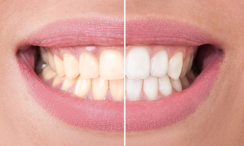 Before and after photo of professional teeth whitening treatment from Water's Edge Dental.